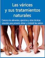 Tratamiento natural para las Varices