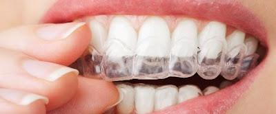 Férula de protección dental