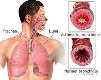 obat tradisional yang ampuh untuk penyakit asma