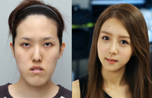 21 amazing before  after cosmetic surgeries in korea that will amaze you