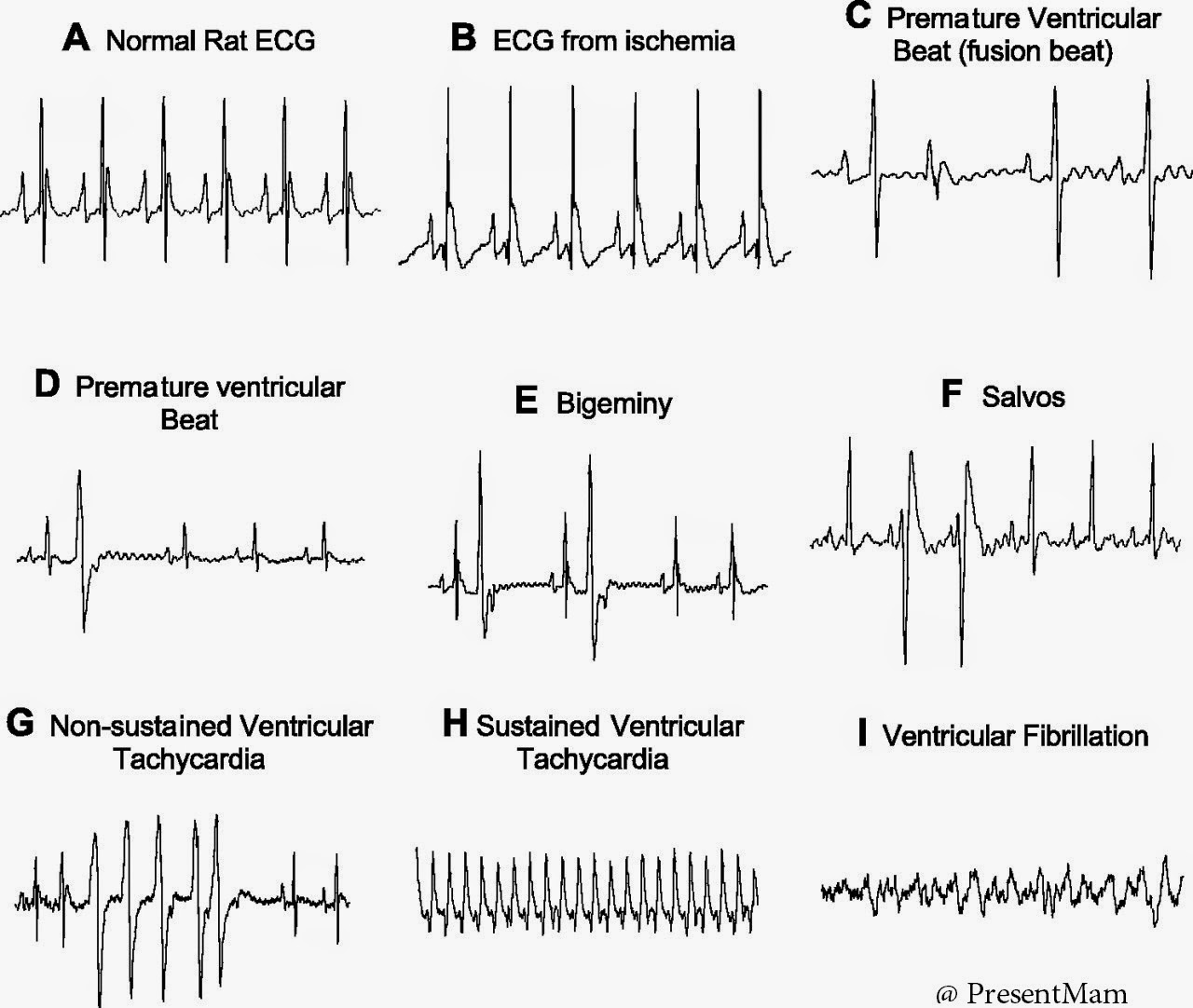 Electrocardiogram New World Created