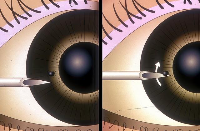 Abrasion eye penetration severe