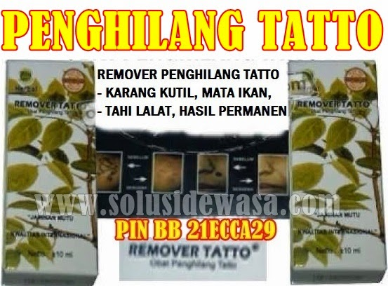 http://www.solusidewasa.com/2014/03/remover-obat-pengilang-tatto-permanet.html