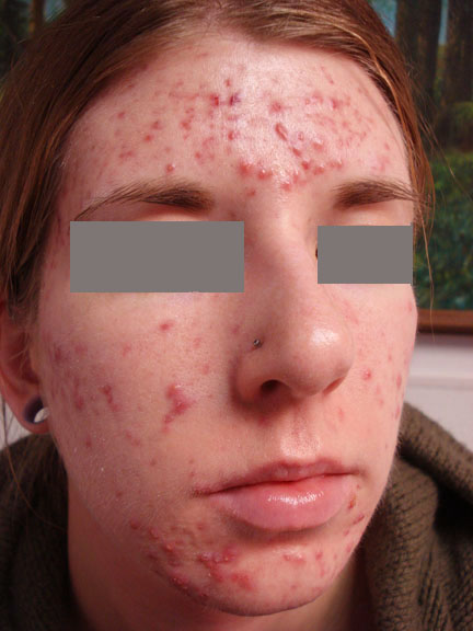 Cystic acne dating