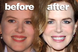 CELEBS AND THEIR TEETH: BEFORE AND AFTER FIXING