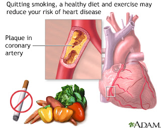 Heart Disease, Atherosclerosis