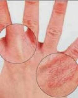 Gejala Penyakit Eksim (Dermatitis) - Ciri dan Tanda Eksim