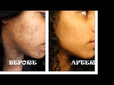 is turmeric good for acne