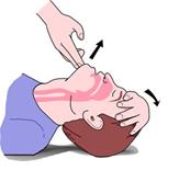 Resultado de imagen de maniobra frente menton
