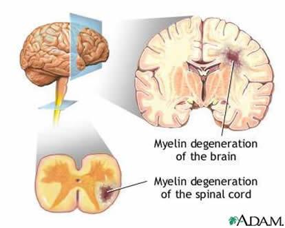 external image Multiple+Sclerosis+%2528nerves+of+the+central+nervous+system%2529+sign.jpg