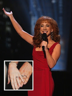 Kathy Griffin Tattoo Removed