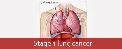 Image Result For Life Expectancy Lung Cancer Stage