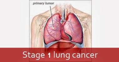 stage 1 lung cancer stage 4 lung cancer. Black Bedroom Furniture Sets. Home Design Ideas