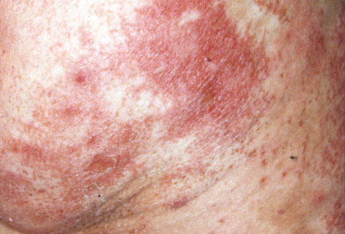 Red Scaly Rash On Legs - Doctor answers on HealthTap