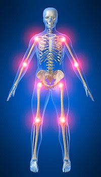 Silná bolest kloubu na celem tele