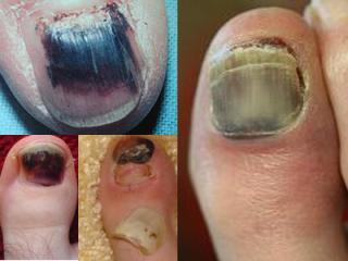 Medical Advice from top Medical Article.: Black toenail fungus ...