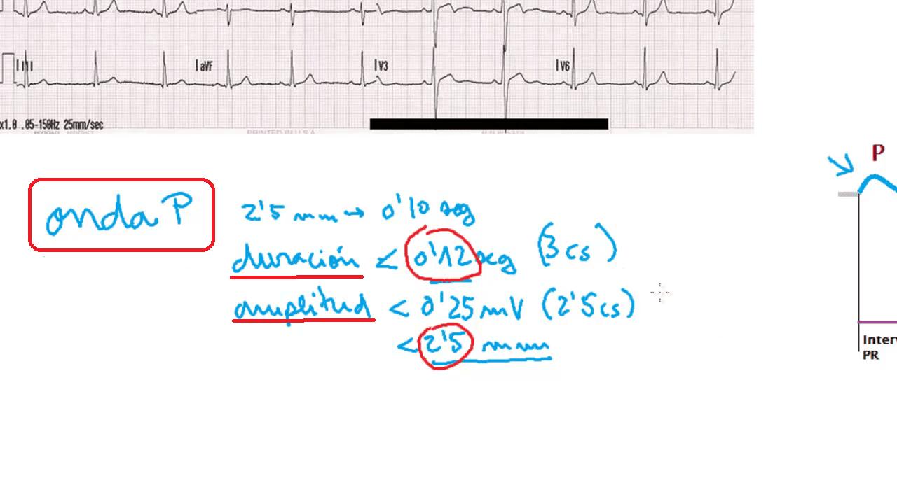 electrocardiograma, onda P