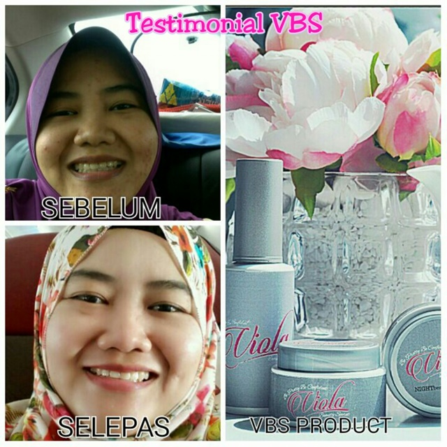 testimoni Viola Beauty Secret