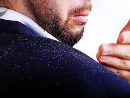 http://www.naturalbodytips.com/2014/09/natural-tips-to-get-rid-of-hair-dandruff.html
