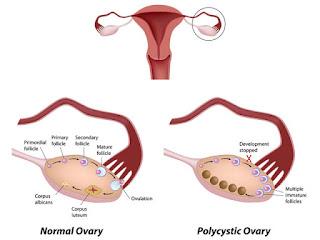 Hội chứng buồng trứng đa nang