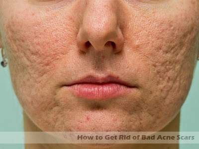 how to get really clear skin