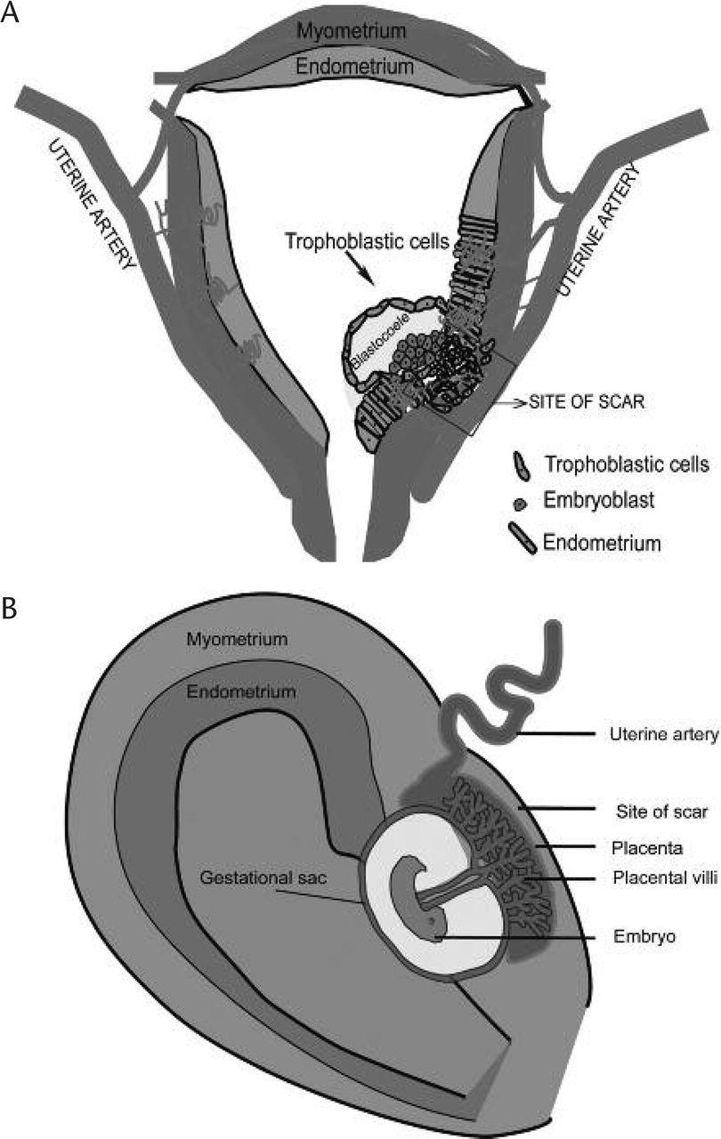 methotrexate in ectopic pregnancy acog guidelines