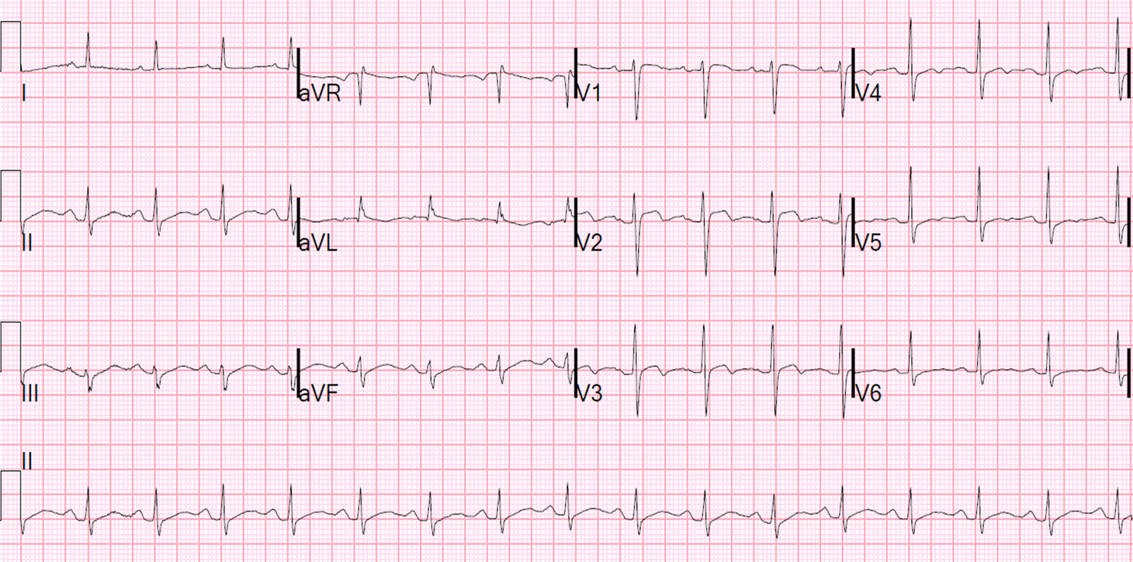 dr smiths ecg blog syncope and st segment elevation
