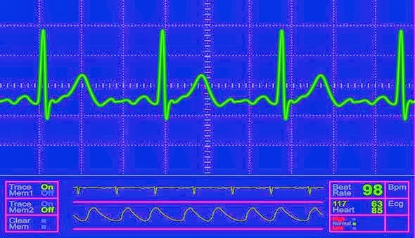 Qardio ECG Monitor Streams Data To Your IPhone