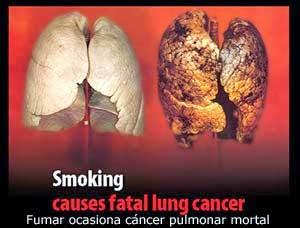 fumar ocasiona cancer pulmonar
