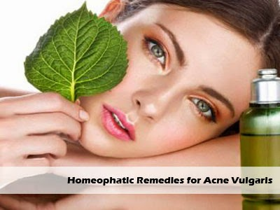 homeophatic remedies for acne vulgaris
