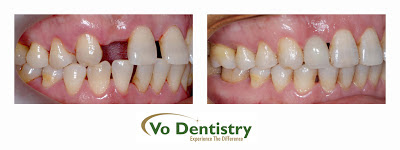Dental Implants, Orthodontic Treatments