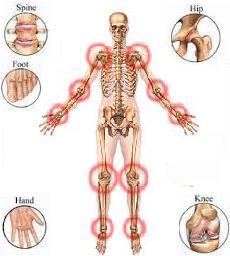 Obat Tradisional Radang Sendi Tulang Kaki dan Tangan