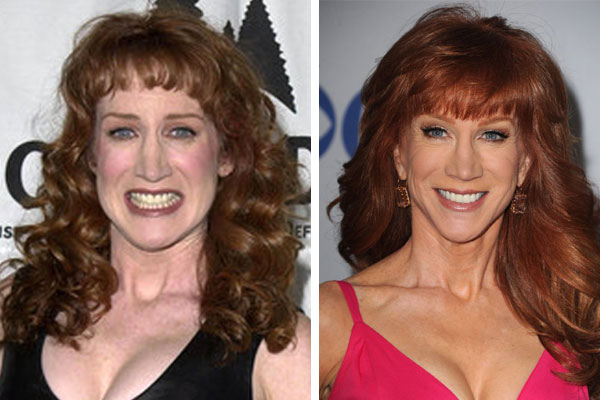 mature-females-young-kathy-griffin-topless-man