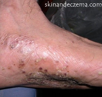 pompholyx eczema treatment
