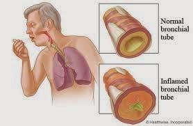 Obat Untuk Penyakit Bronkitis