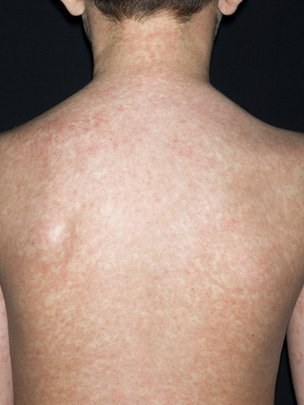 the tap: MMR vaccine fails to prevent measles outbreak in ...