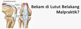 Bahaya Bekam di Lutut Belakang