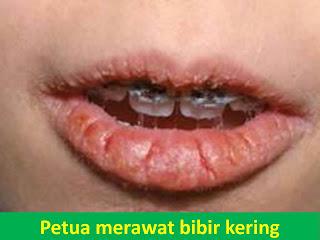 Tips dan Cara Menghindari Bibir Pecah-pecah dan Bibir Kering
