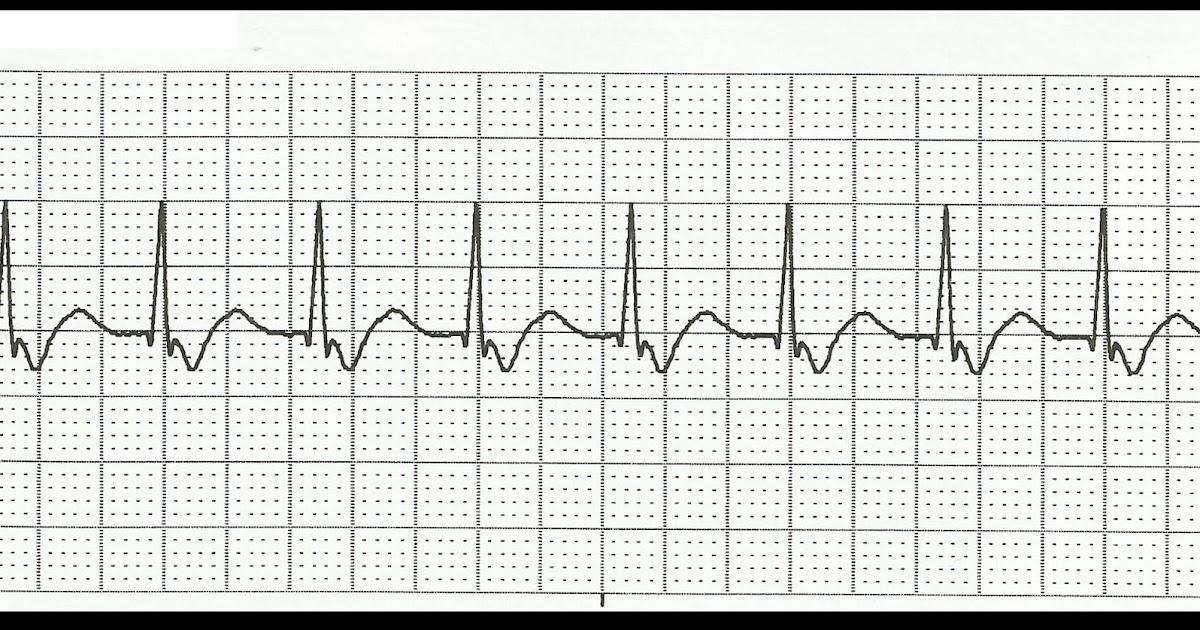 Float Nurse: Basic EKG Rhythm Test 07