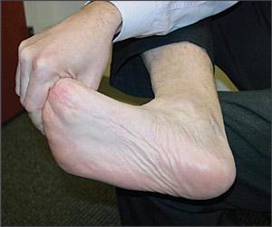 เจ็บใต้ฝ่าเท้าเวลาเดิน เวลายืน