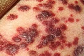 pengobatan herbal kanker kulit