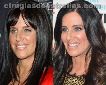 Patti Stanger antes y después