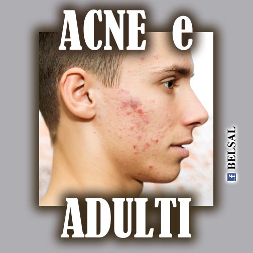 http://curare-acne-brufoli.blogspot.com/2015/11/acne-brudoli-adulti.html