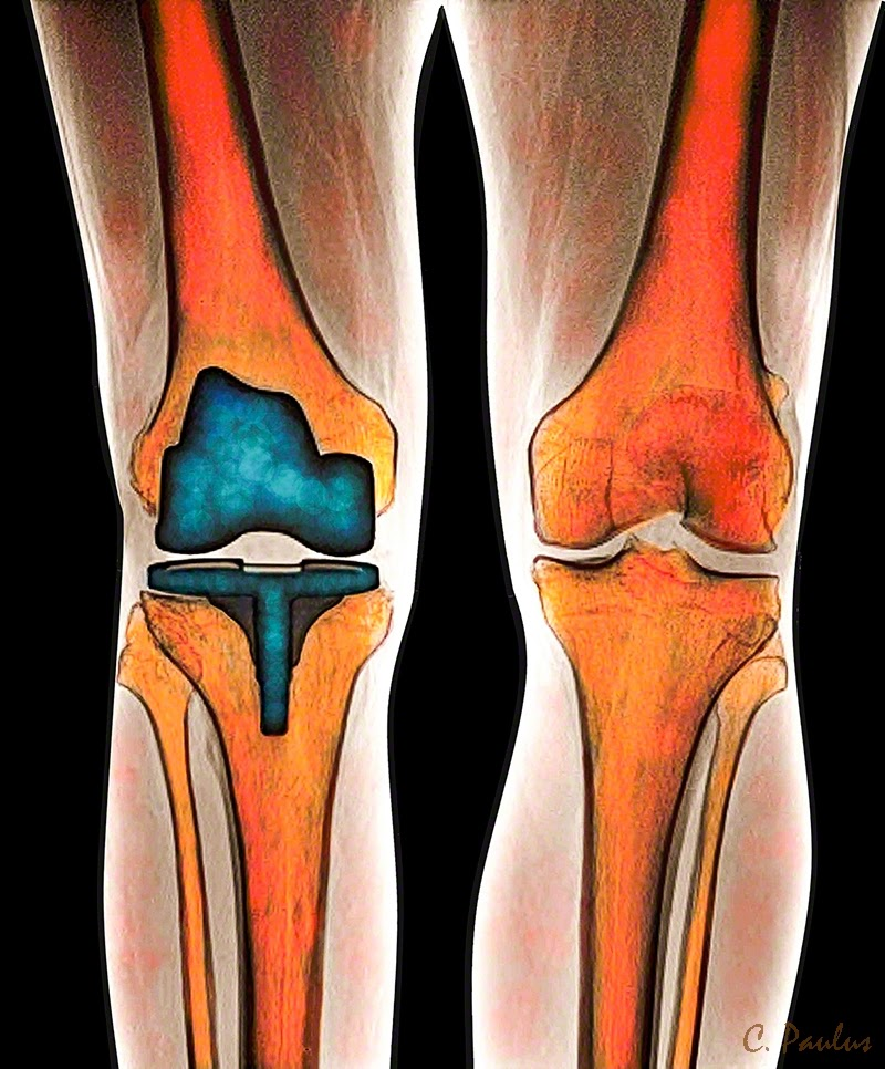 Color Knee X-Ray showing a Knee Replacement