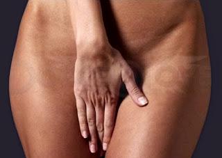 Pedos Vaginales