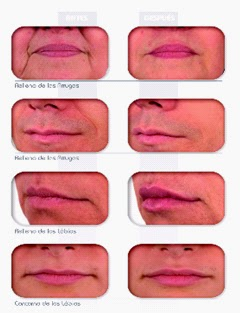 truco-realzar-labios-sin-cirugía