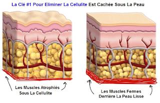 la cellulite est un problème structurel