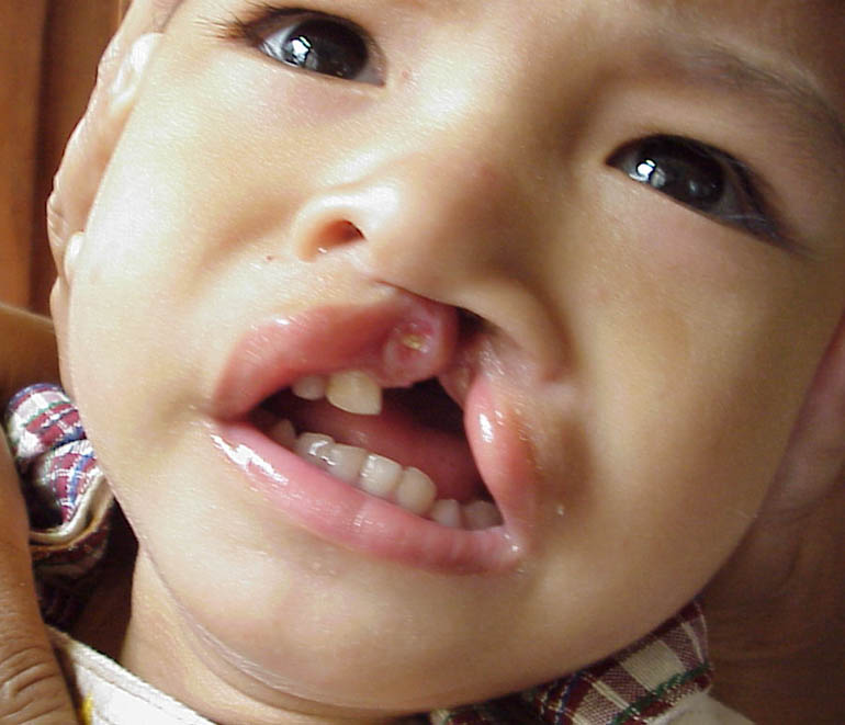 Returning Smiles to Those Affected With Cleft Lip Palate ...