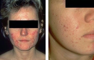 potential cause of acne