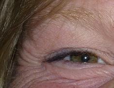 eye wrinkles.jpeg